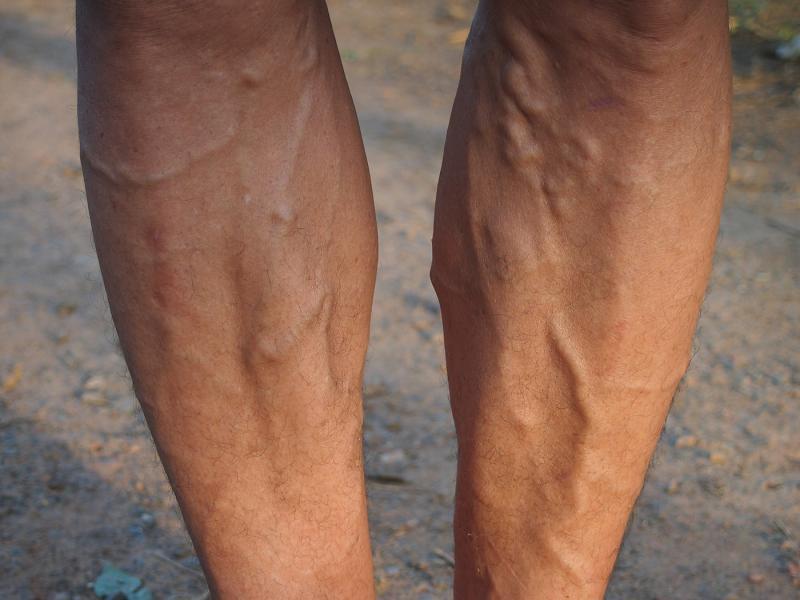krampfadern beine